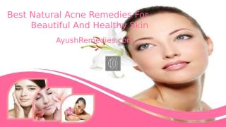 Best Natural Acne Remedies For Beautiful And Healthy Skin.pptx